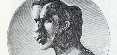 Syndrome d'hypercroissance du type que présentait l'Homme Éléphant à l'ère de la médecine de précision