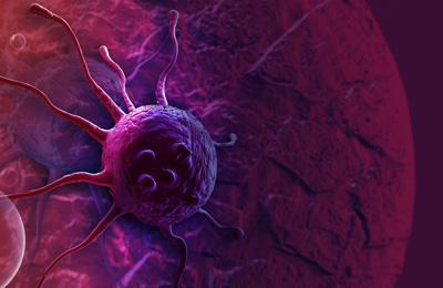Thématique cancer